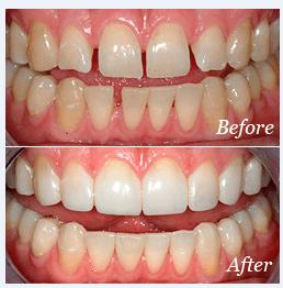 Cosmetic Bonding White Filling Silver Screen Dental