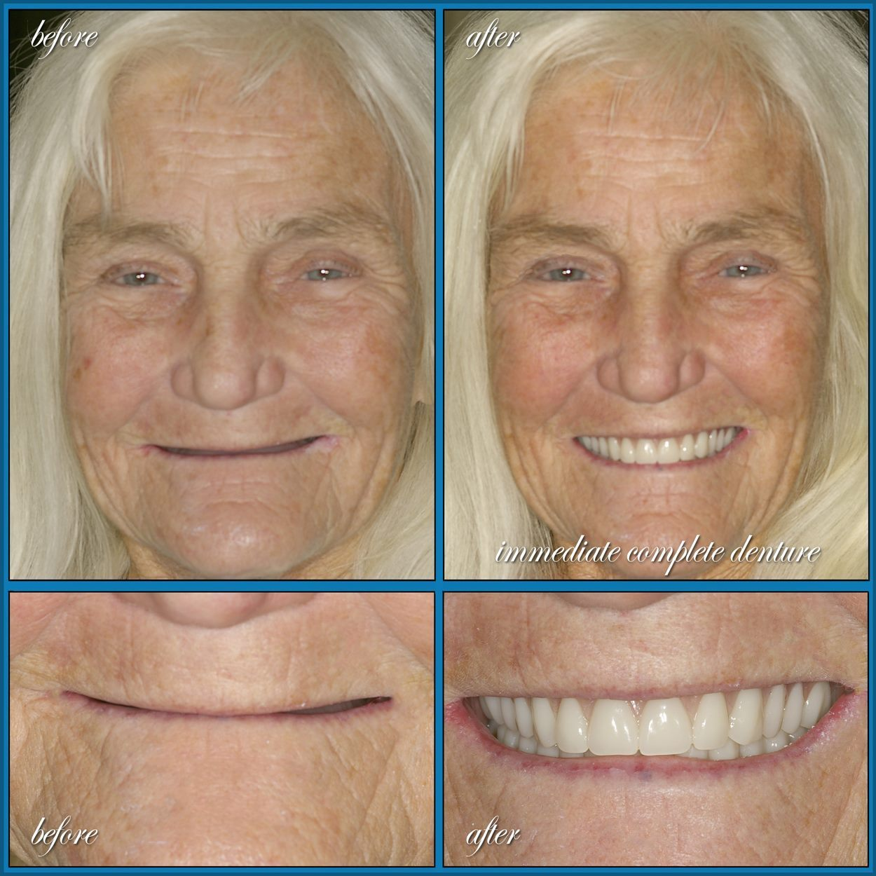 Dentures - North Austin - Silver Screen Dental