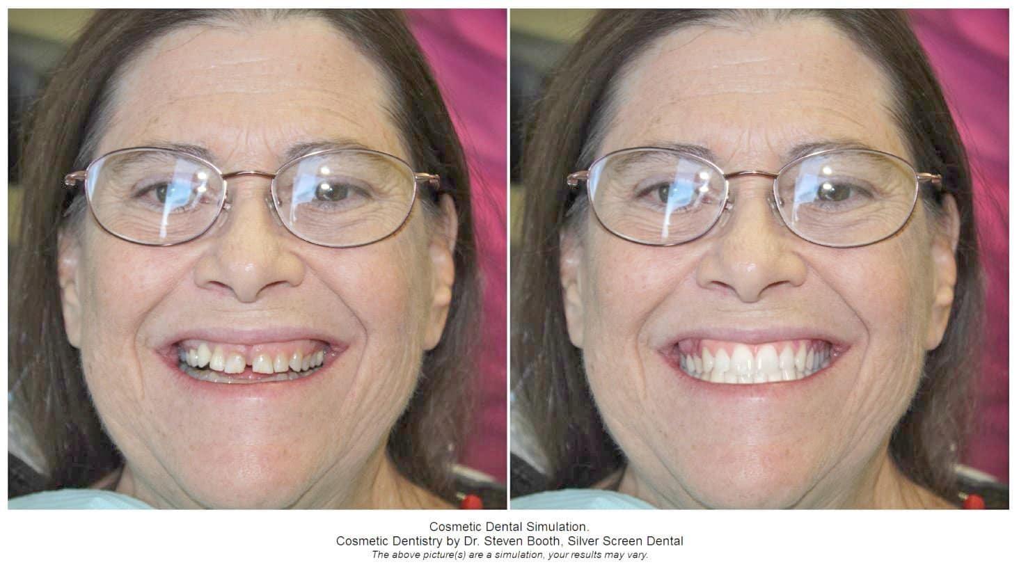 Silver Screen Dental in Austin, TX
