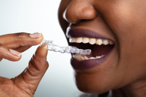 woman holds dental aligner